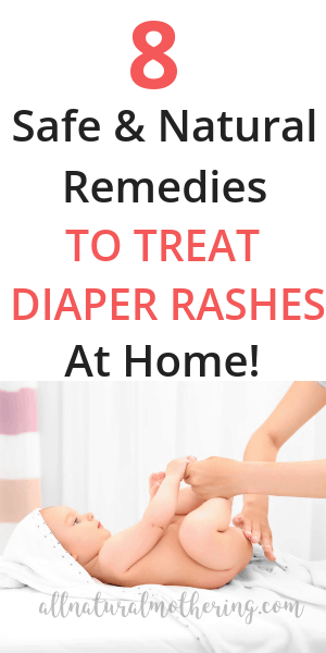 Natural home remedies for diaper rash treatment.